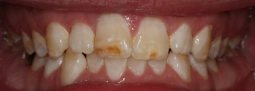composite-bonding-before